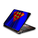 Laptop Notebook Cover Protective Skin Sticker(SMQ2381)